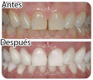 отбеливание зубов zoom 4 отзывы