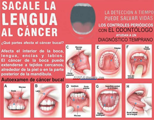 Reconocimiento del cáncer bucal
