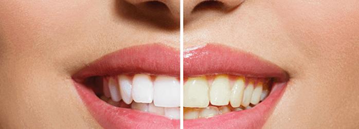 Resultados de un blanqueamiento dental